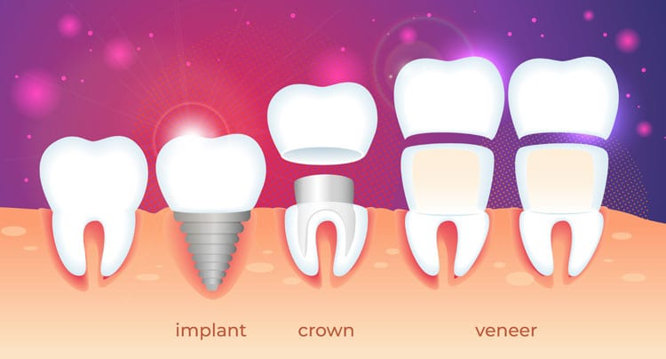 Implant Crown Veneer explained